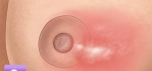 mastitis y bultos en el pecho